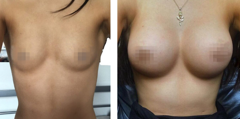 Breast Enlargement London (16).png