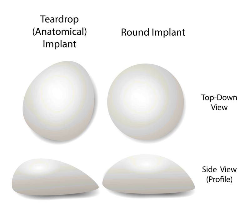 Breast implant shapes types breast enlargement.png