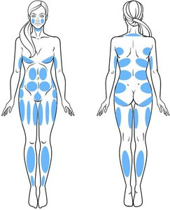 Medbelle Areas of Liposuction