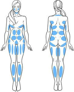 VASER Liposuction areas