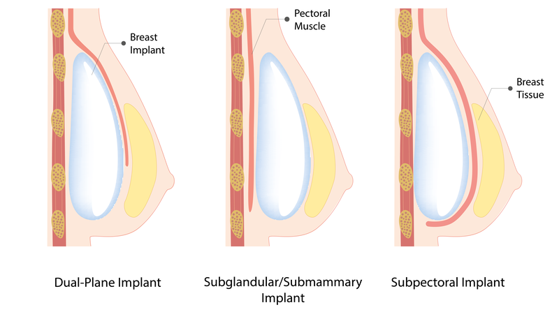 breast implant insertion