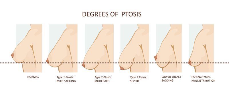 degree of ptosis in breasts