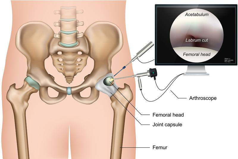 hip arthroscopy incisions.png