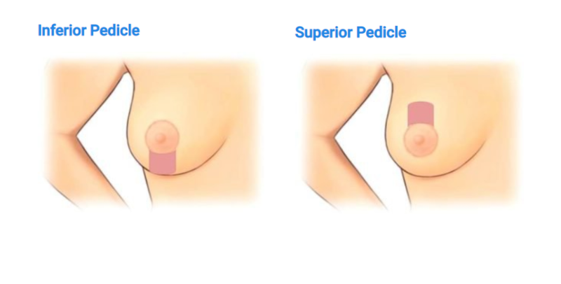inferior pedicle superior pedicle.png