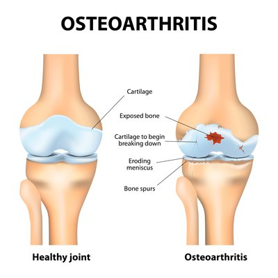 knee osteo diagram.jpg
