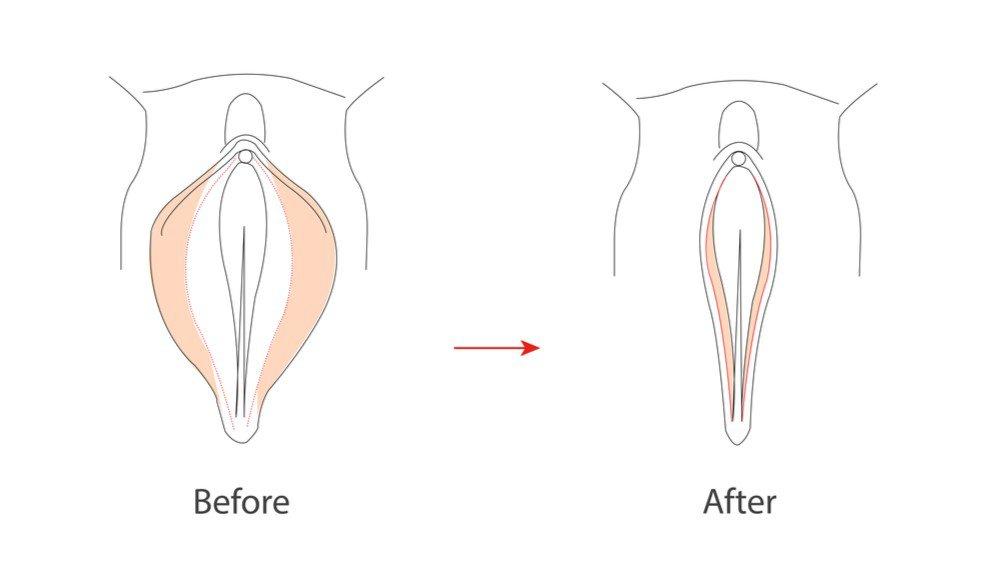 Labiaplasty illustration