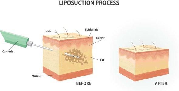 liposuction.jpg