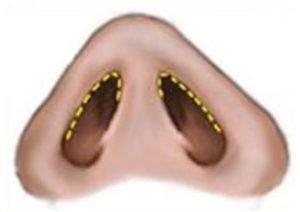 lower-eyelid-3-1.jpg
