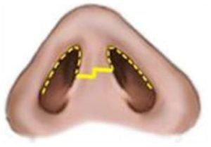 lower-eyelid-4-1.jpg