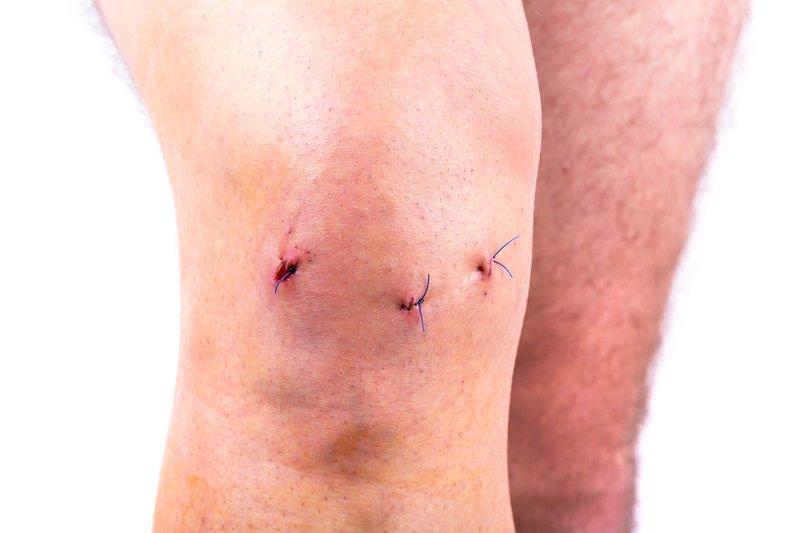 meniscus repair incisions
