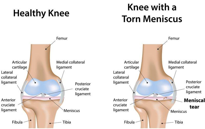 healthy knee meniscus tear