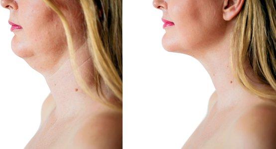 neck-uplift.jpg