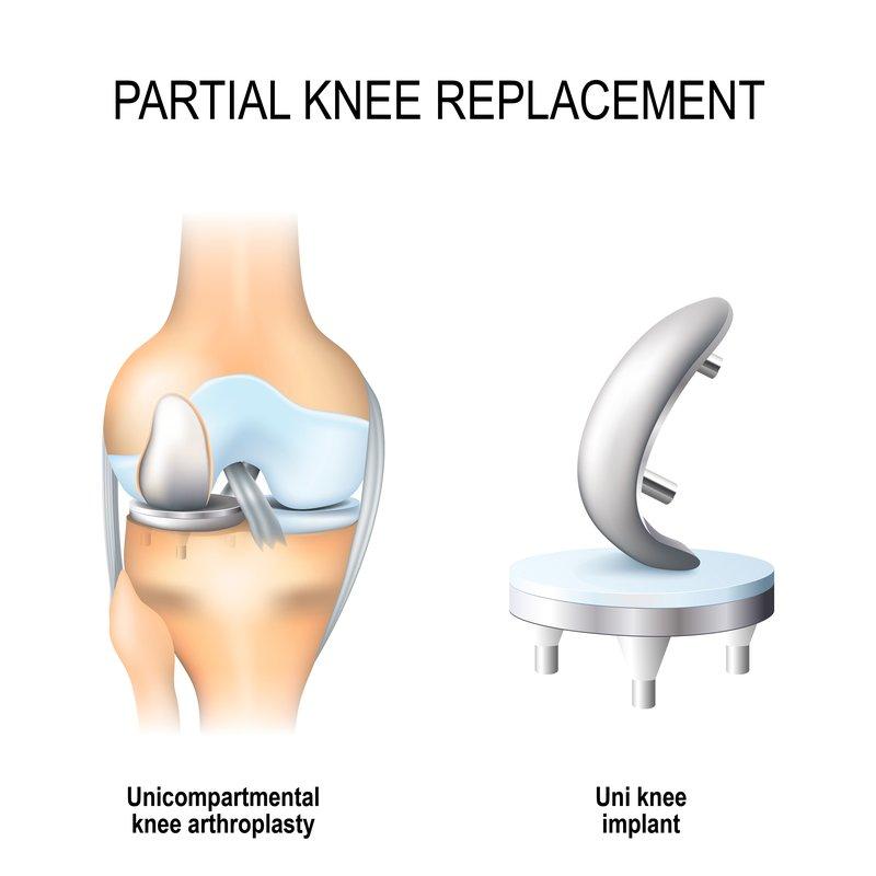 partial_knee_replacement_surgery_procedure
