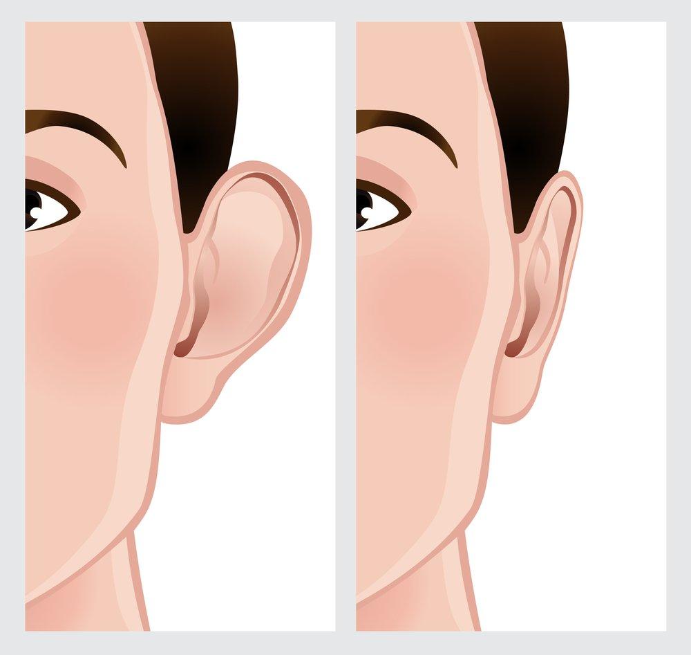 Otoplasty results illustration