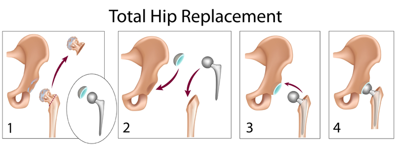 total hip replacement-0_steps_figure1.png