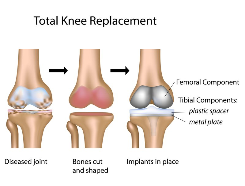 total_knee_replacement_procedure_surgery