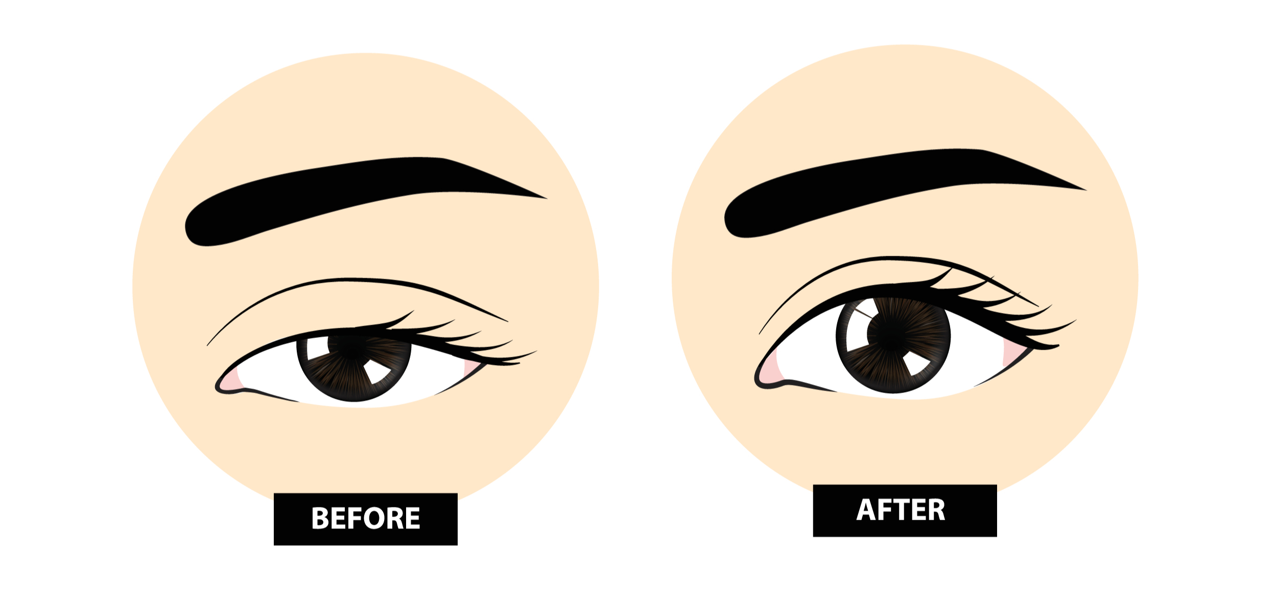 Eye ptosis surgery before and after
