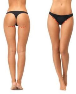 Inner incision for thigh lift