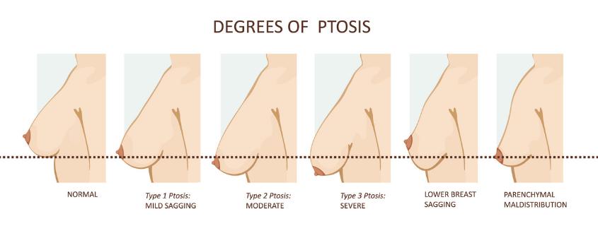 Ptosis Diagram