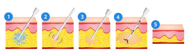 VASER Liposuction.png