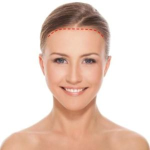 anterior hairline brow lift incision