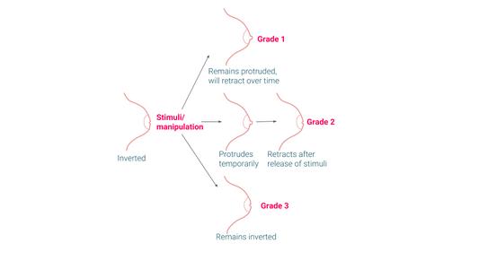 grades of nipple inversion