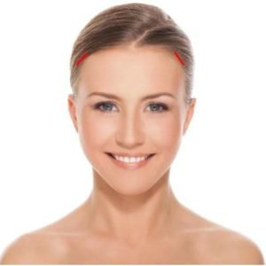 lateral temporal brow lift incisions