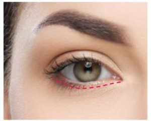 lower eyelid surgery incision