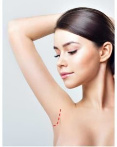 minimal incision for arm lift