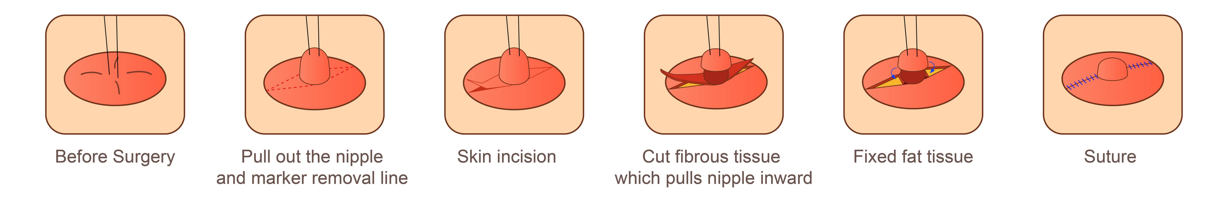 nipple correction surgery