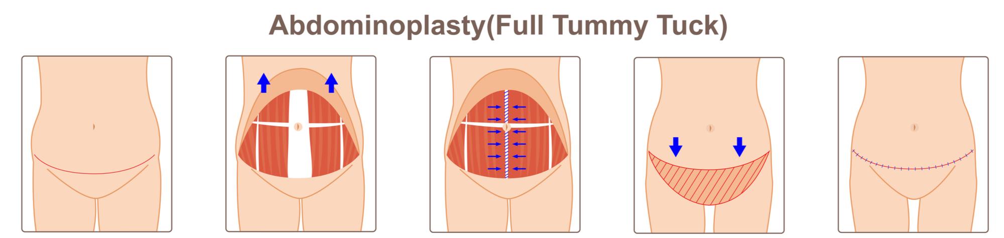 Abdominoplasty Tummy Tuck diagram
