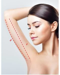 standard incision for arm lift