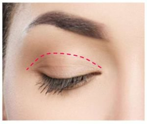 upper eyelid surgery incision